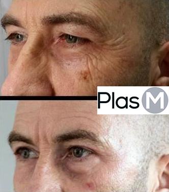 Soin anti age PlasM